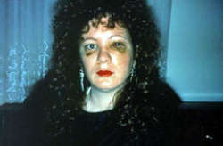 Nan Goldin, Nan one month after being Battered 1984