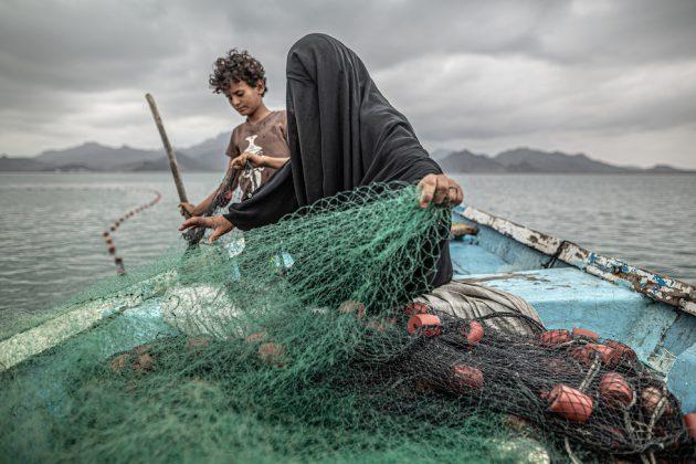 Contemporary Issue, 1° premio Yemen: Hunger, Another War Wound © Pablo Tosco, Argentina
