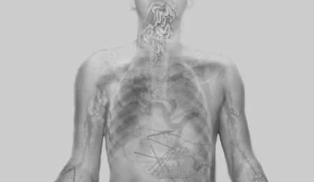 Donato Piccolo – Iper-corpi